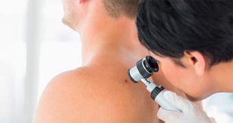 Dermatólogos en Málaga